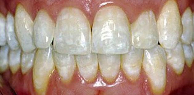 Răng nhiễm fluor