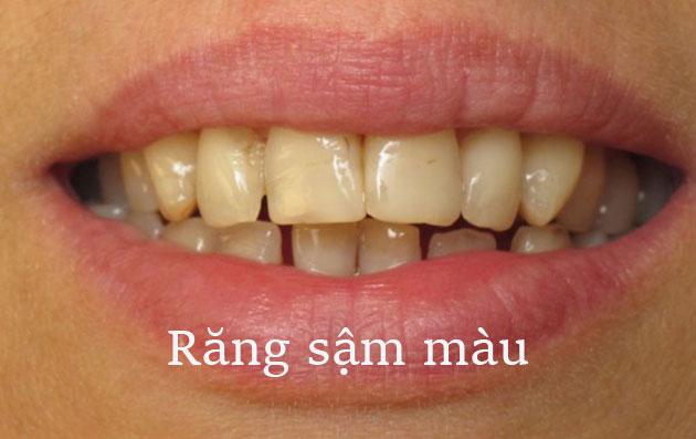 Răng bị sậm màu
