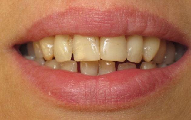 Răng sậm màu