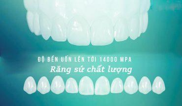 Răng sứ chất lượng