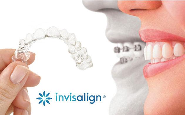 So sánh giữa niềng răng không mắc cài và niềng răng mắc cài