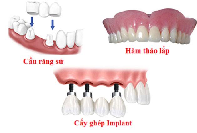 So sánh hàm tháo lắp - Implant - Cầu răng