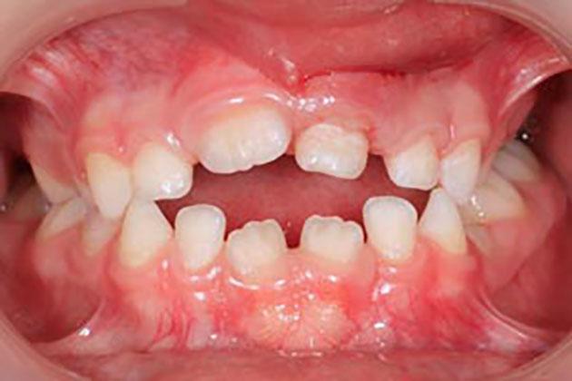 Tác hại của việc đẩy lưỡi