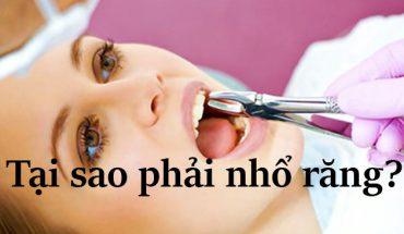 Tại sao phải nhổ răng