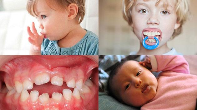 Tật xấu ảnh hưởng đến răng miệng của trẻ