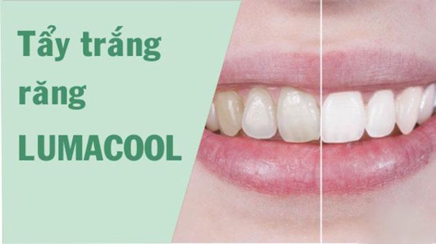 Kết quả tẩy trắng răng lumacool