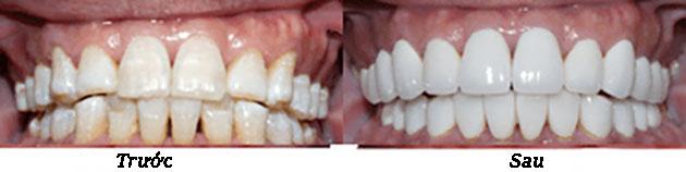Tẩy trắng răng nhiễm fluor