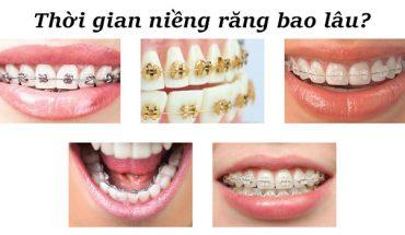 Thời gian niềng răng bao lâu