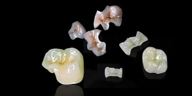 Thời gian tồn tại miếng trám răng
