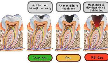 Tiến trình sâu răng
