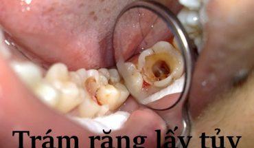 Trám răng có lấy tủy