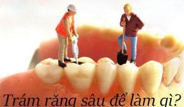 Trám răng sâu để làm gì