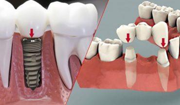 Trồng răng giả cố định
