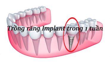 Trồng răng implant trong 1 tuần
