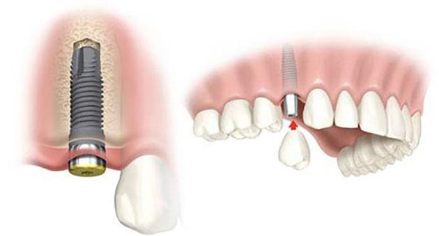 Trụ implant trở thành một phần của cơ thể
