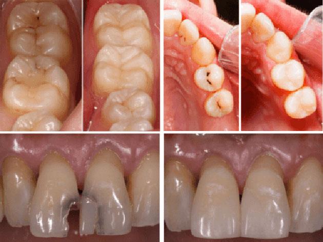 Trường hợp trám răng thẩm mỹ