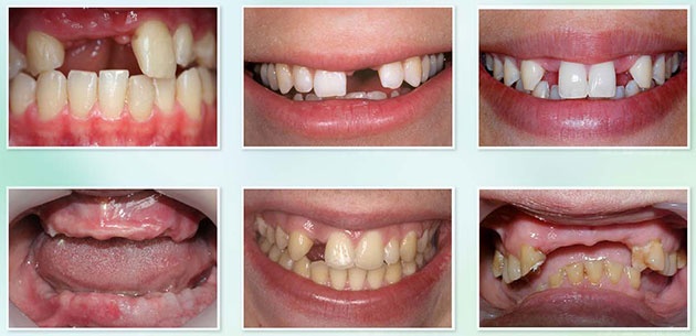 Trường hợp trồng răng implant