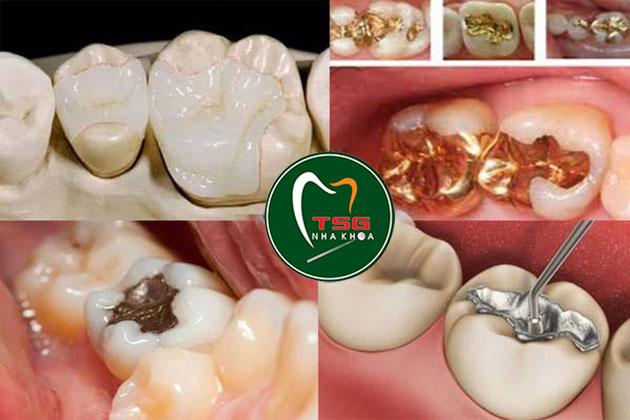 Vật liệu trám răng