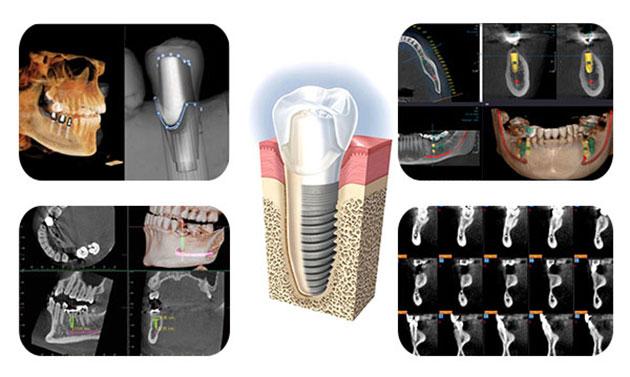 Xương hàm phát triển bao quanh trụ implant