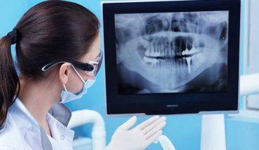 Ảnh X-quang nha khoa trước mặt khách hàng