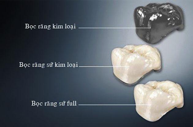 Các loại răng sứ Titan