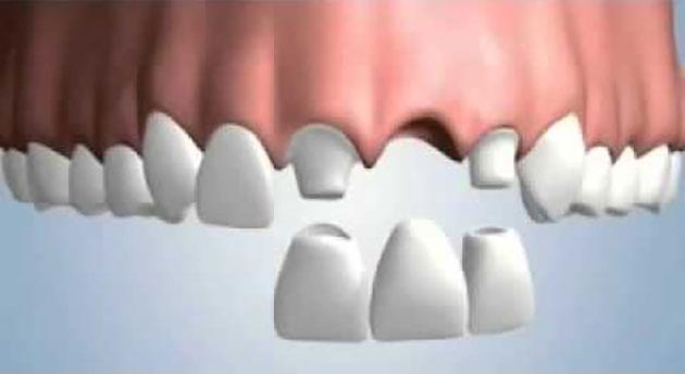 Cầu răng sứ cho răng cửa