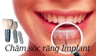 Chăm sóc răng implant