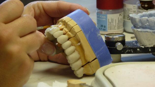 Chế tác răng sứ