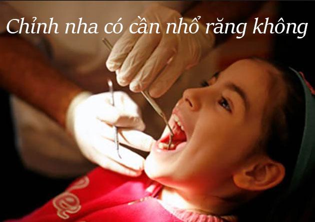 Chỉnh nha có cần nhổ răng không