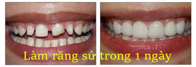 Làm răng sứ trong 1 ngày