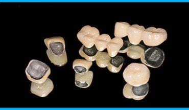 Mão răng - Cầu răng sứ kim loại