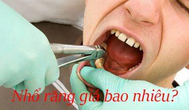 Nhổ răng giá bao nhiêu