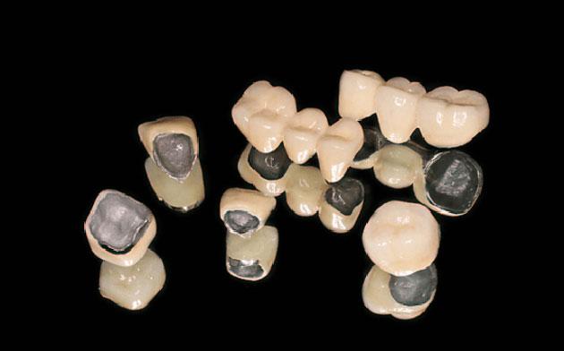 Răng hàm làm bằng răng sứ Titan