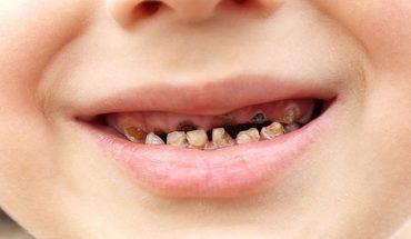 Sâu răng viêm nướu ở trẻ em