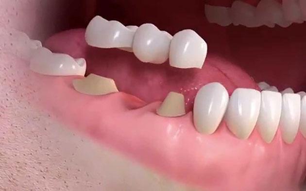 Trồng răng sứ bắt cầu