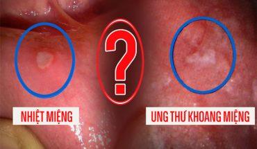 Ung thư miệng và loét miệng